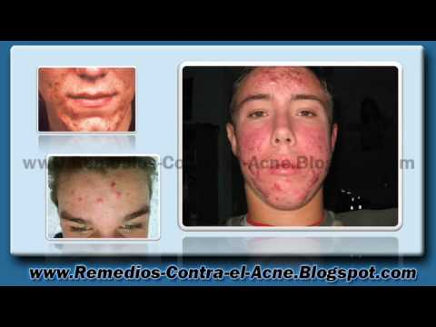barmicil para que sirve acne