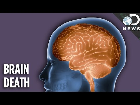 Is A Brain Dead Person Actually Dead?