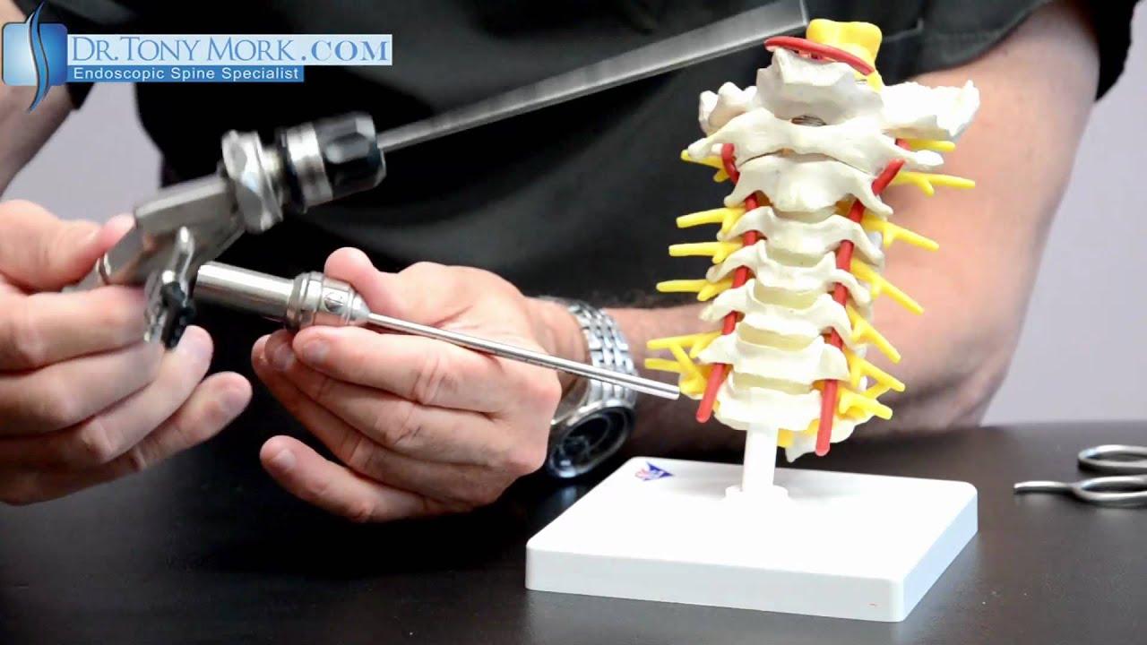 Endoscope For Cervical Disc Herniation Youtube