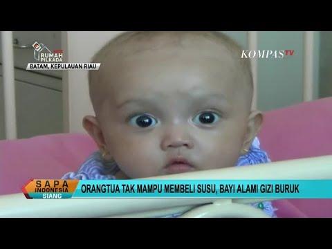 Orangtua Tak Mampu Beli Susu, Bayi Alami Gizi Buruk
