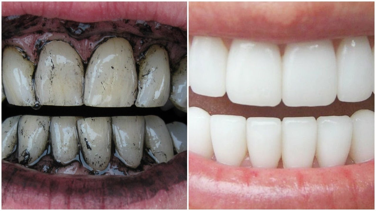 How To Whiten Teeth Instantly At Home With Charcoal Get White
