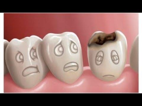 ¿Tienes Caries o Problemas Dentales?. La Biodescidificación Dental te explica que te sucede