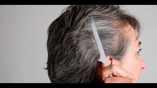 5 Vitamins That Can Control Premature Graying Of Hair