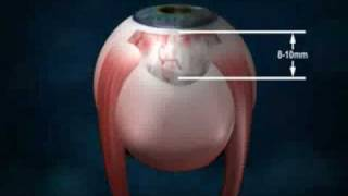 szemészeti endothel biomikroszkópia)
