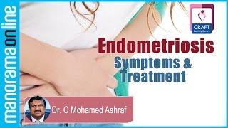 Endometriosis -Symptoms & Treatment | Dr. C Mohamed Ashraf  | Craft Infertility Centre
