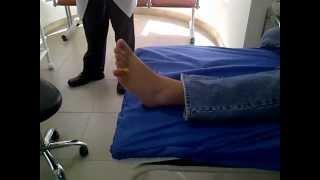 Reducción dedo dislocado - Fracturado del pie