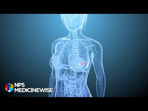 Breast tenderness and  hormone replacement therapy (HRT) - from Tonic TV