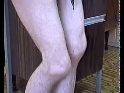 Контрактура коленного сустава вторичный артроз суставов стоп