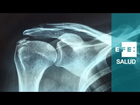 que es la tendinitis calcificante de hombro
