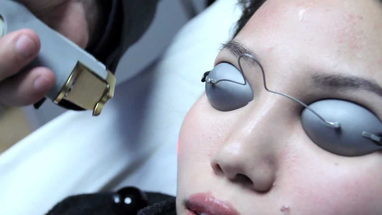 Laser Genesis by Cutera at Skin Perfect Brothers Medical Spa - YouTube