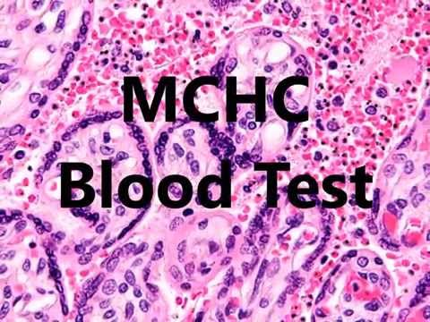 mchc-blood-test-low-high-in-a-complete-blood-count