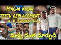 Macha Kiran Teeth Replacement | Dr. K. Bhuvindar, B.D.S.,