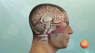 New life Season 1 Ep 131:  Brain Tumor: Symptoms, Surgery, Types, and Treatment
