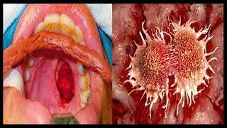 Best Ayurvedic Treatment for Cancer By Rajiv Dixit thumbnail