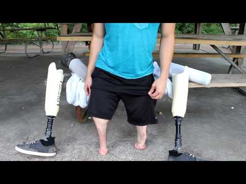 WHY I Can Walk With NO LEGS On My STUMPS!