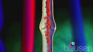 Dr varicosas beaumont para venas