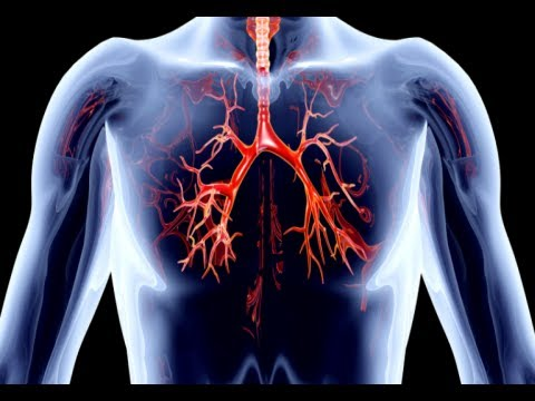 How to Remove Calcium Deposits From Arteries - Clogged Arteries Home Remedies