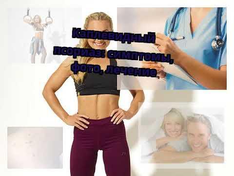 Каплевидный псориаз: симптомы, фото, лечение