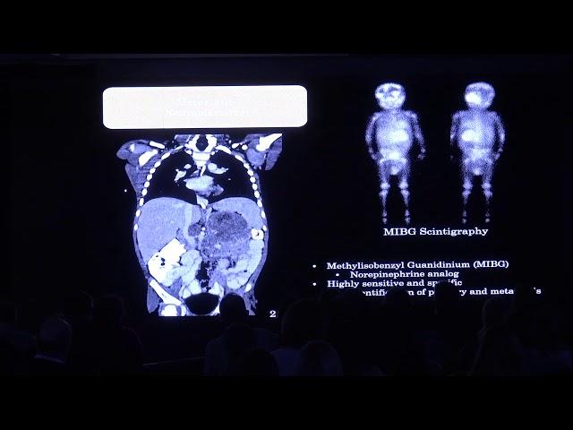 Tumores musculo-esqueléticos en pediatría. Diego Jaramillo