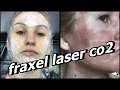 my second fraxel laser co2! acne scars before and after