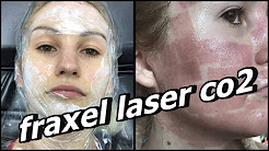 hqdefault - Fractional Co2 Laser Acne Scars Before After