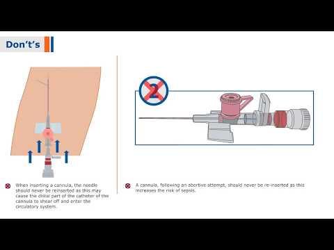 BD Venflon I - I.V Cannula with BD Instaflash Needle Technology