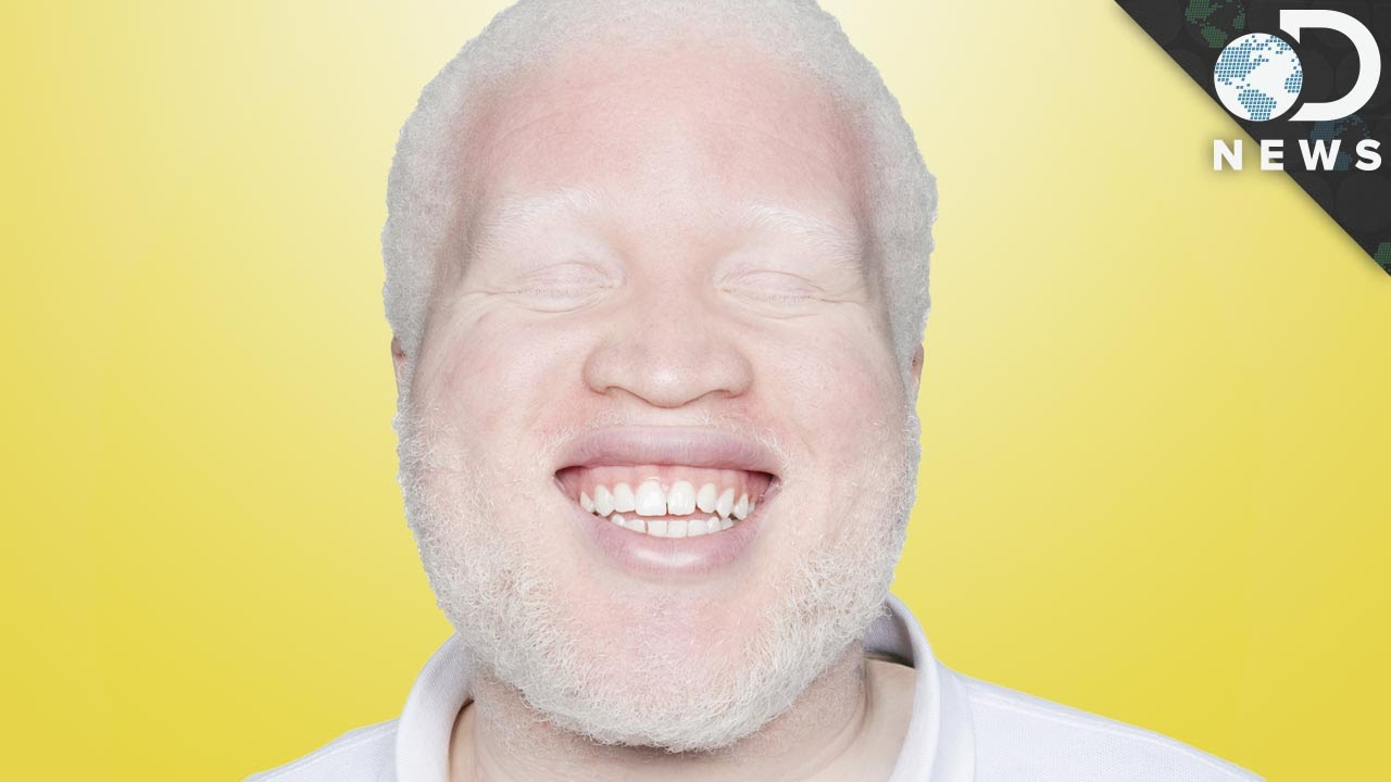 dating sites for albinism