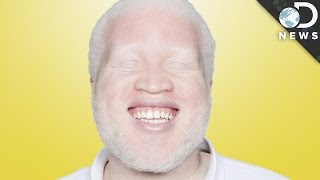 Why Are Some People Albino?