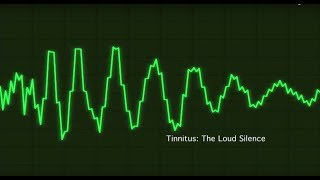 Tinnitus - The Loud Silence