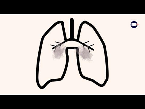 Tips Van De Dokter Wat Doet Roken Met Je Longen Youtube