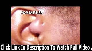 Popping sinus kyste! Qu'est ce qu'un sinus pré auriculaire Zits