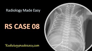 FRCR Radiology RS Cases 08 : A premature baby presented with SOB