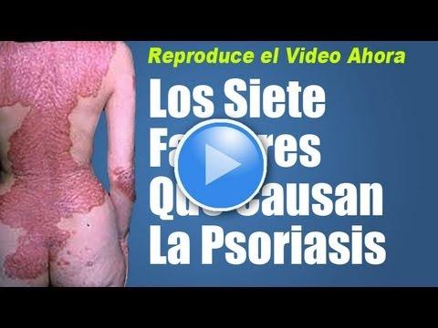 El ungüento salicílico como usar a la psoriasis