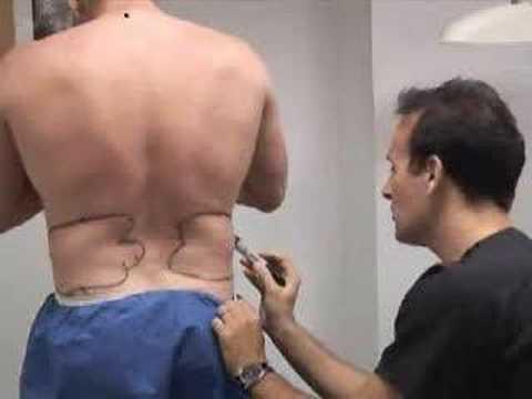 Vaser Liposuction by Dr. Frank, New York Part 1
