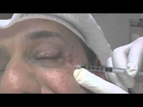 Blepharospasm and Botox Treatment