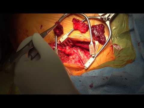 Thoracic outlet syndrome surgery:  Dr. Rajabrata Sarkar