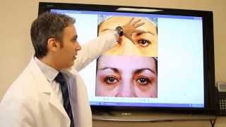 Dr. Kotlus tells how to fix a droopy eyelid