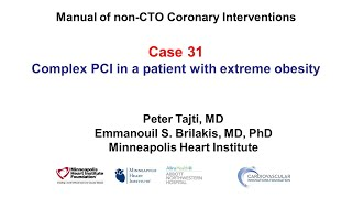Case 31: Manual of non-CTO coronary interventions - PCI and extreme obesity