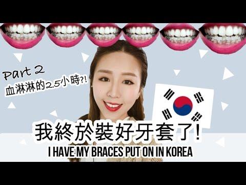 (中字) 血淋淋的2.5小時?! 我裝好牙套了! 韓國牙套日記Part 2