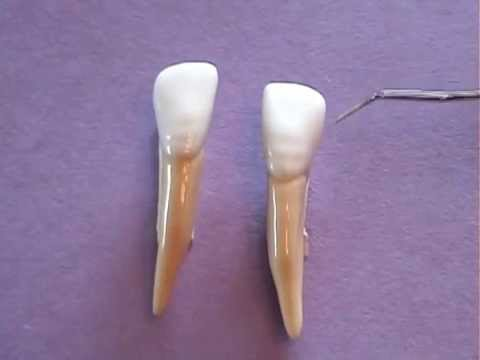 Mandibular Lateral Incisor Anatomy