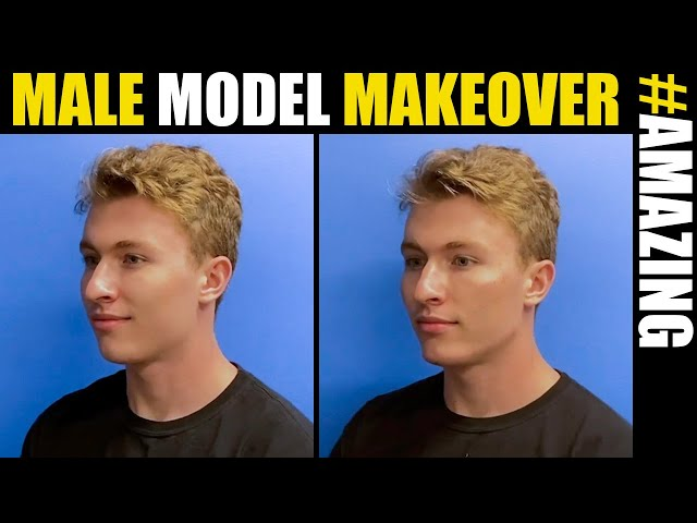 Male Model Makeover with Facial Filler by Dr. Steinbrech #15