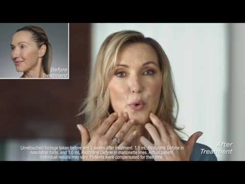 Restylane Refyne & Defyne Northern Virginia: Real Patient Stories