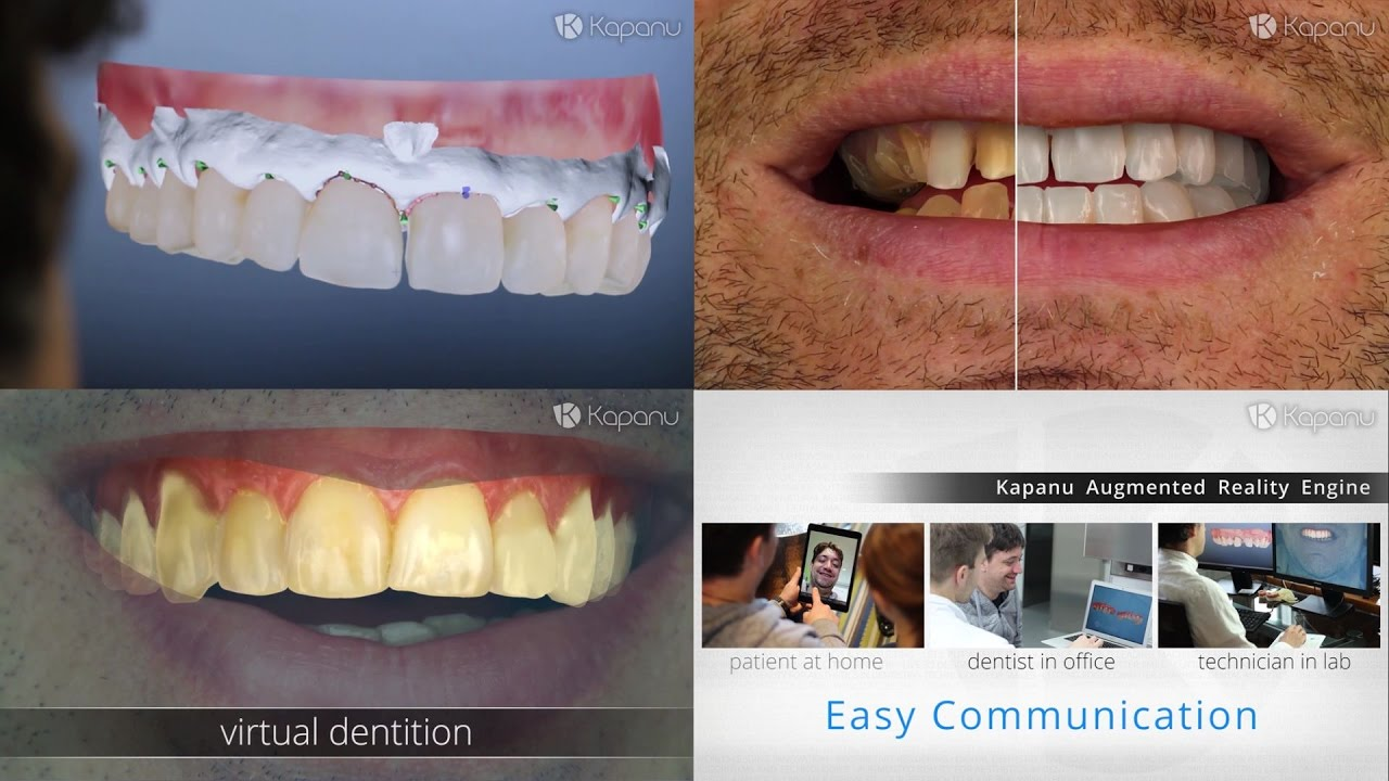 Kapanu | Augmented Reality for the Future of Dentistry ...