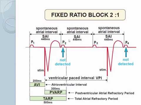 Advanced pacemaker features