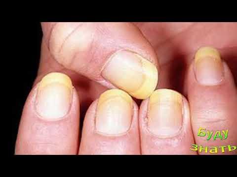 Почему ногти желтеют на руках