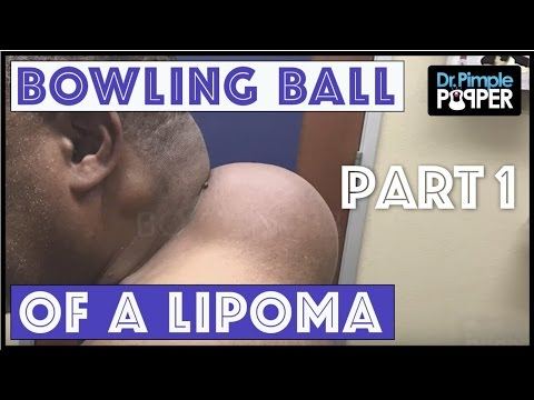 A Mother of a Lipoma Part One