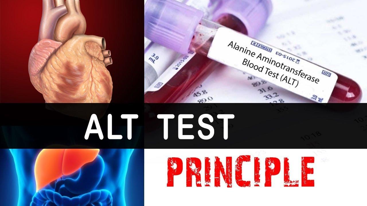 test alt
