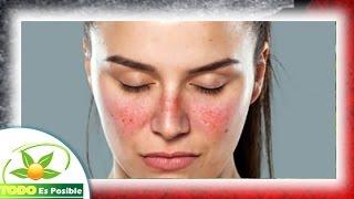 que es el lupus y sintomas de la enfermedad del lupus q es