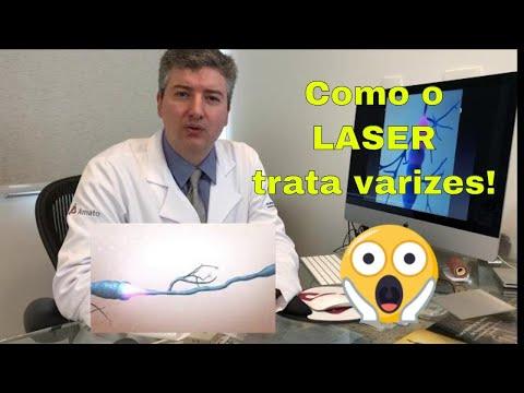 O que o laser venoso faz com a veia? LASER destroi varizes?