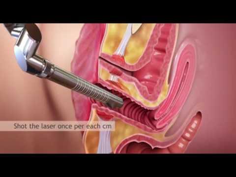 Lazerle Vajina Daraltma (Vajinal Rejuvenasyon) Ameliyatı